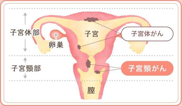 宮頸 が ん 検査 子